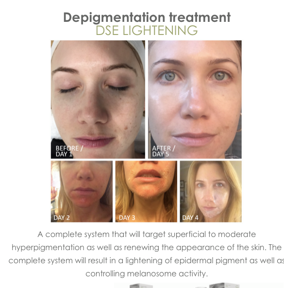 The DSE Mask and Peel Treatment process of lightening