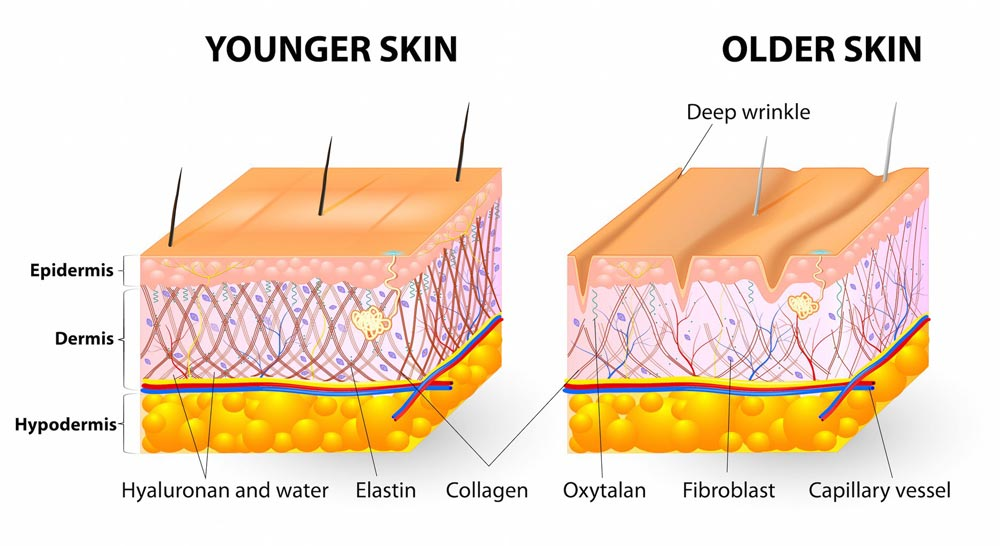 Aging Skin - Younger and Older Skin Diagram for Skin Care